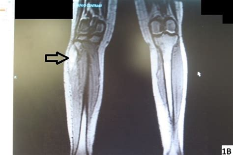 ASPN - Compression Neuropathy of the Common Peroneal Nerve