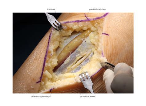 Superficial Peroneal Nerve Release in the Lower Leg