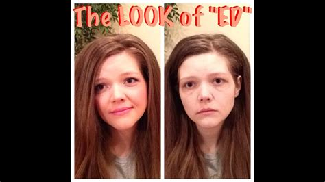 The LOOK of an EATING DISORDER (my top 8 list) - YouTube