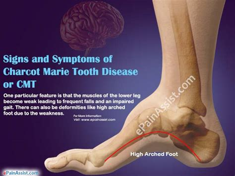 Charcot Marie Tooth Disease or CMT  Symptoms, Causes