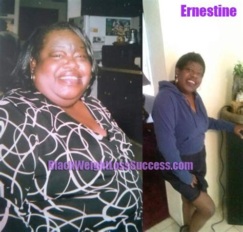 Ernestine lost 100 pounds with weight loss surgery | Black