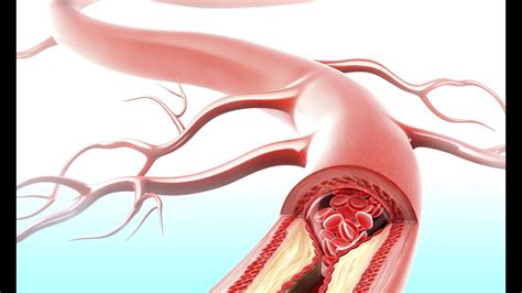 How stress can clog your arteries | Science | AAAS