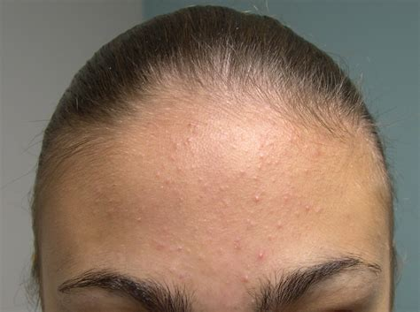 Medical Pictures Info – Types of Acne